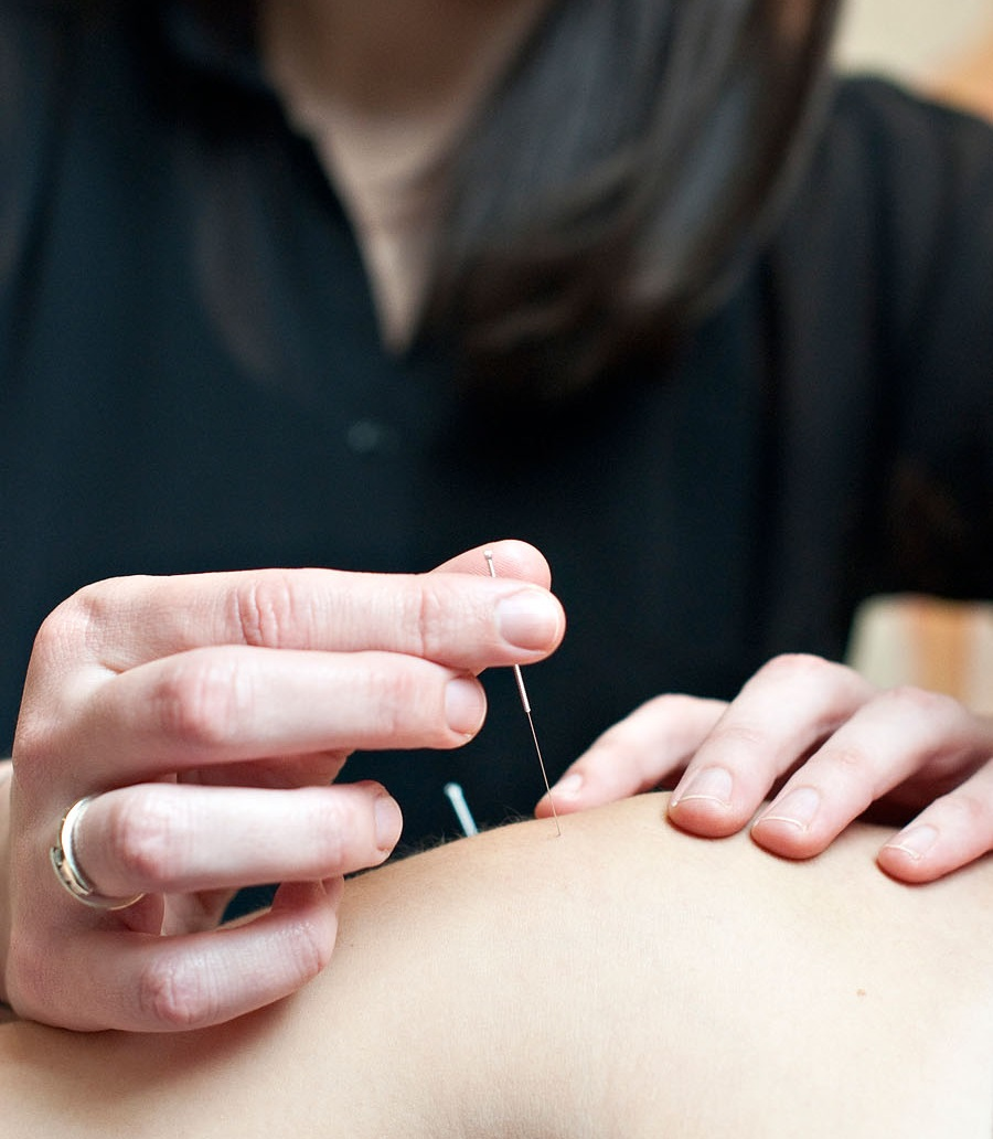 Gunn Ims Intramuscular Stimulation At Envision Physiotherapy